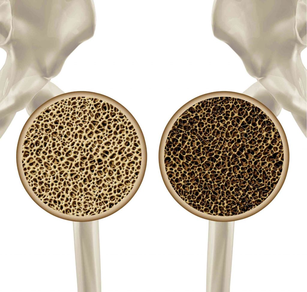 osteoporose barendrecht